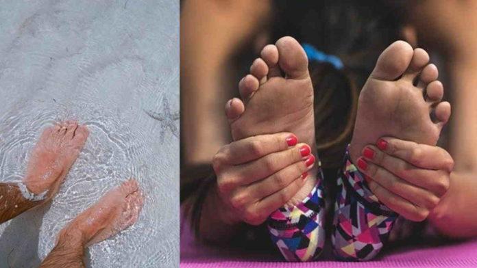 Penyebab kaki pecah dan kering