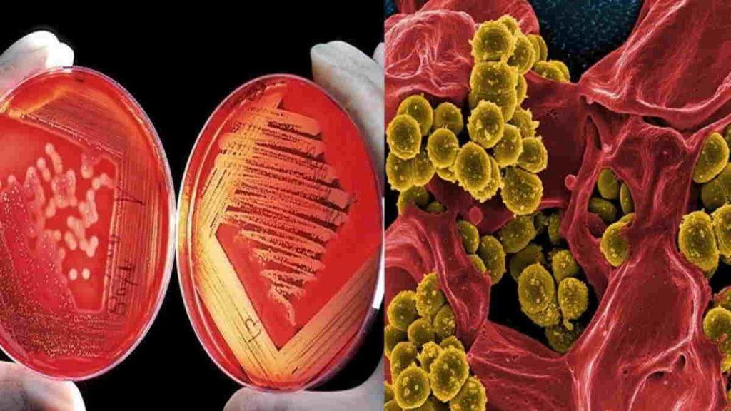 tanda dan gejala anemia