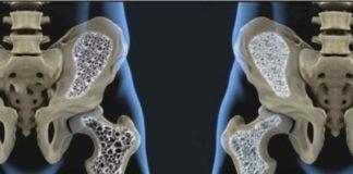 Kelainan Pada Tulang Perlu Di Waspadai, Cegah Dengan Olahraga
